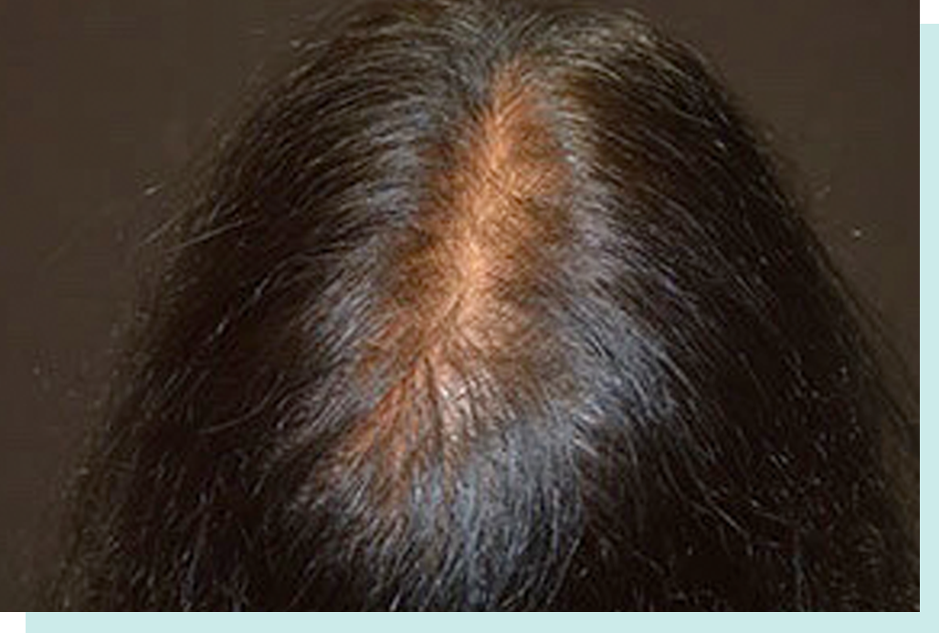 After Hair Loss Treatment