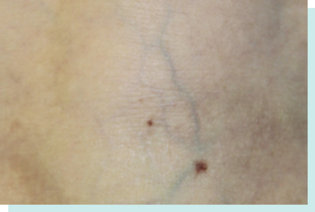 After Laser Vein Treatment