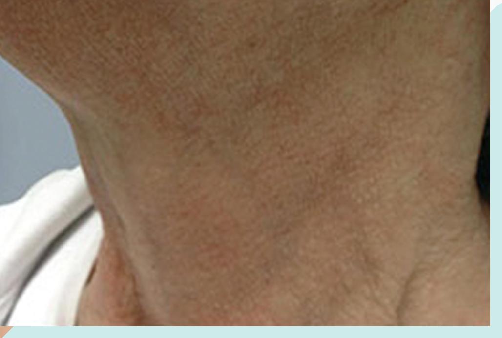 After Skin Rejuvenation