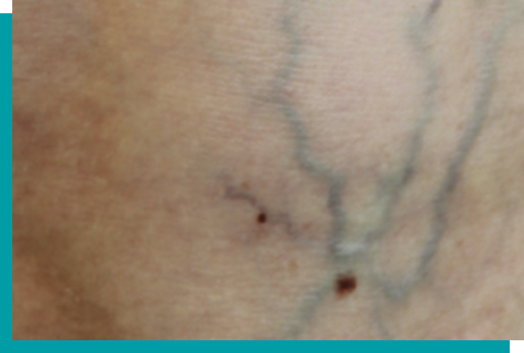 Before Laser Vein Treatment