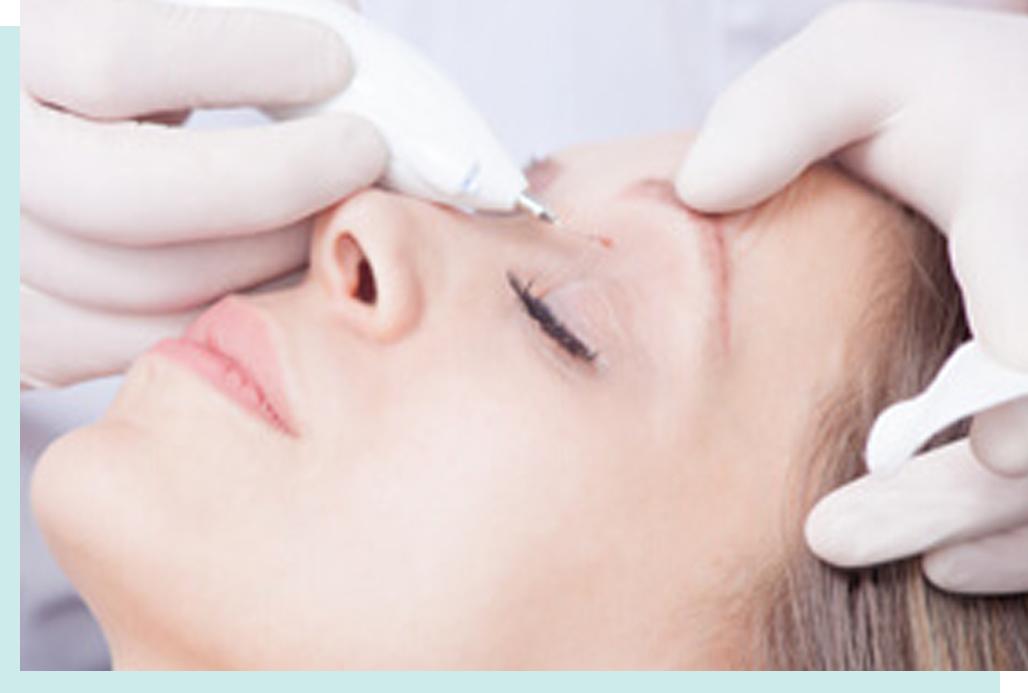 facial papilloma removal)