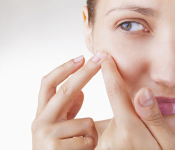 Scarring Can Be Improved With Acne Scar Treatment