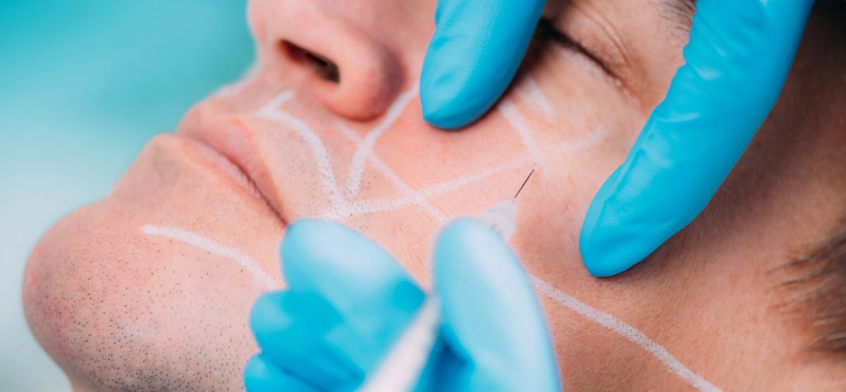 What are the Benefits of Dermal Fillers?