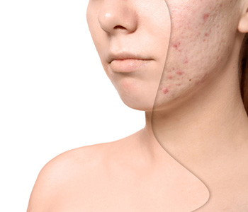 Discover Treatment Options and How to Get Rid of Acne Scars